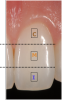 Fig 1. When restoring pink esthetics, the fourth dimension of color encompasses the gingival architecture, or pink.