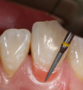 Fig 17. A yellow flamed diamond bur kit was used for imparting microtexture across all restorations.