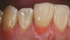 "Fig 20. Postoperative view of the completed composite restorations provided to treat ""the absence of pink."" Note that this gingival prosthetic solution is repairable, non-invasive, and cost-effective for patients."