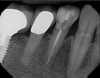 Fig 1. Multiple restorations decrease enamel and dentin strength, requiring full-coverage enhancement.